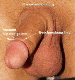 Low tight beschneidung